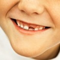 vo-skolko-let-vypadayut-molochnye-zuby